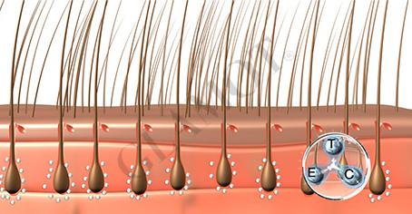 Die Hormone der Haarausfall die fettige Haut